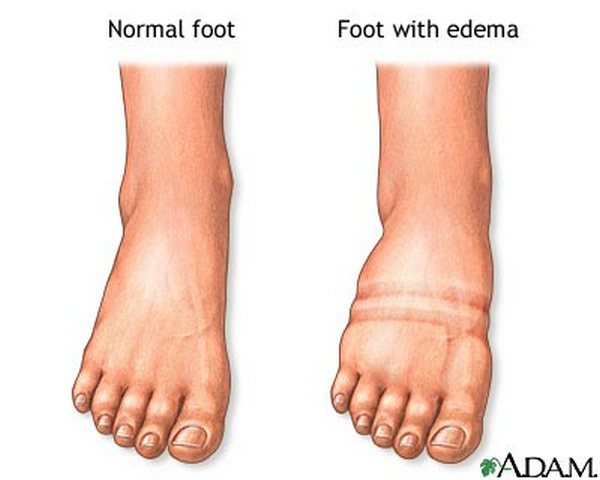 Natural Treatment For Fluid Retention